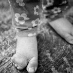 سایه سنگین بیماریهای ژنتیک در پی افزایش ازدواج فامیلی